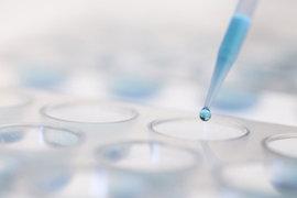 Продажа молекулы позволит компании «Р-фарм» заработать на биоаналоге и участвовать в мировых исследованиях жизненно важных лекарств