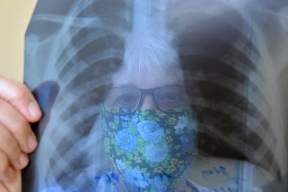 Число больных с коронавирусом в России превысило 432 000 человек