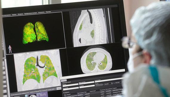 В России за сутки выявили 6431 новый случай коронавируса